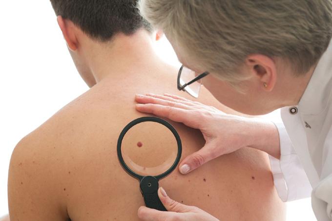 Desarrollarán en Cuba campaña de prevención del cáncer de piel