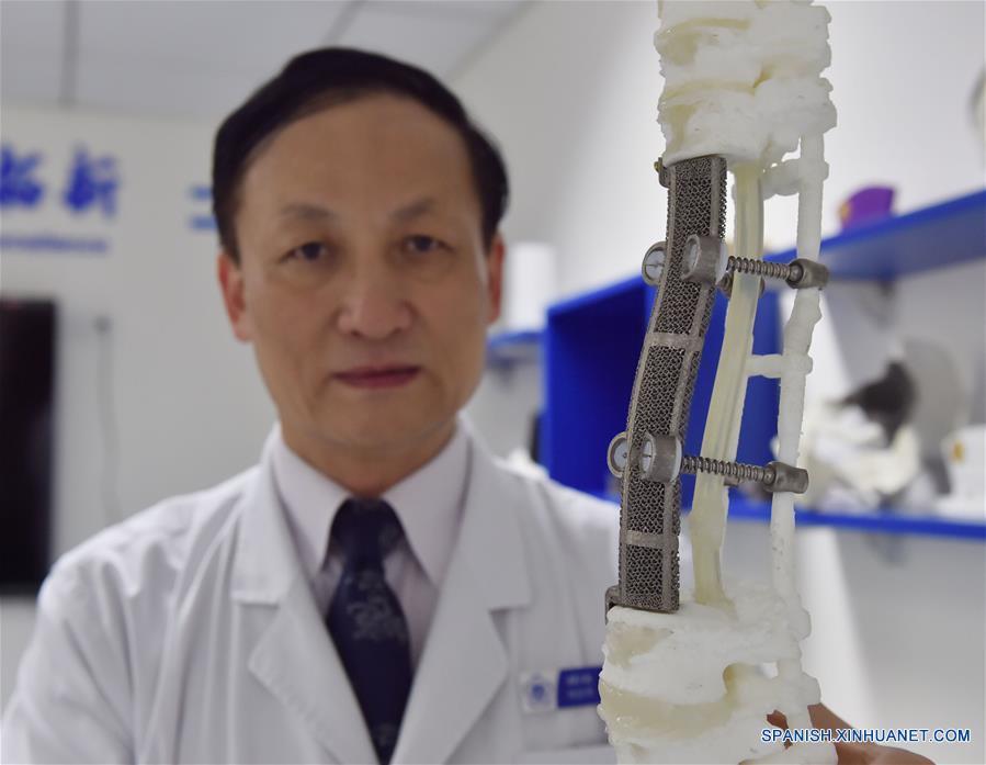 Médicos chinos lograron récord en operación de columna vertebral