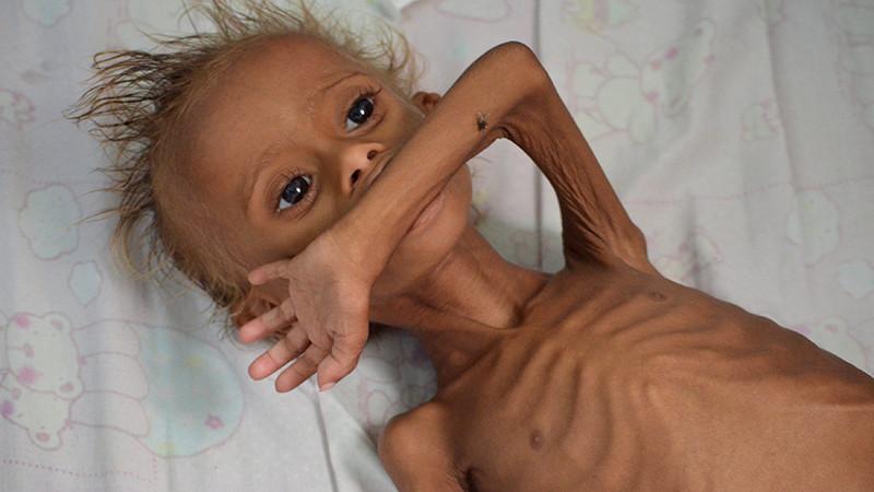 Niños famélicos en Yemen