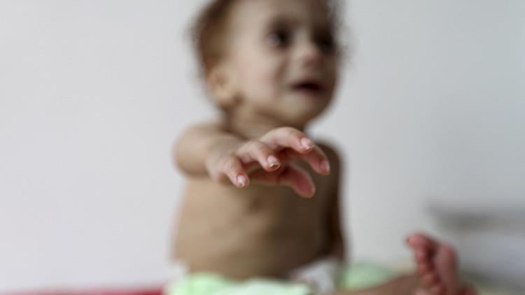 Yemen: espeluznantes imágenes de niños famélicos nos muestran la crueldad de una guerra olvidada