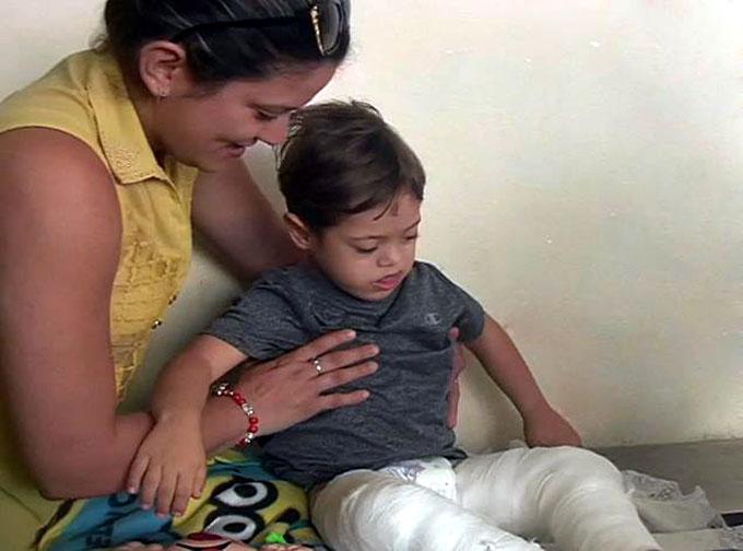 Evoluciona bien niño operado de luxación de rótula bilateral (+ fotos y video)