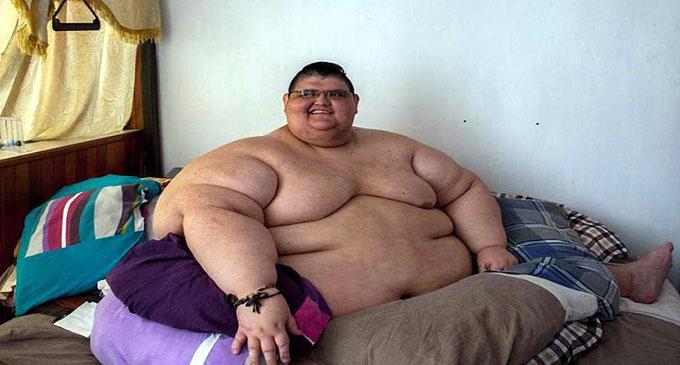 Hombre más obeso del mundo sale de cama tras siete años