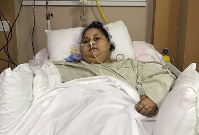 Muere mujer que llegó a pesar media tonelada