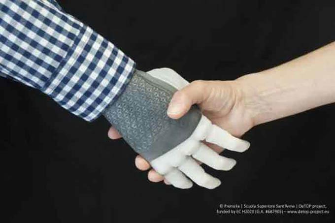 Realizan primer implante permanente en el mundo de una mano robótica