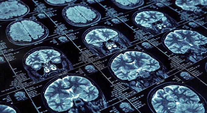 Sesiona en Cuba I Escuela de Neuroinmunología