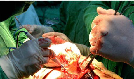 Practican sofisticada operación de mamas por vez primera en Granma
