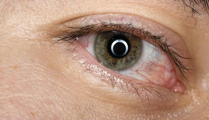 La conjuntivitis puede dejar secuelas si no se detecta precozmente