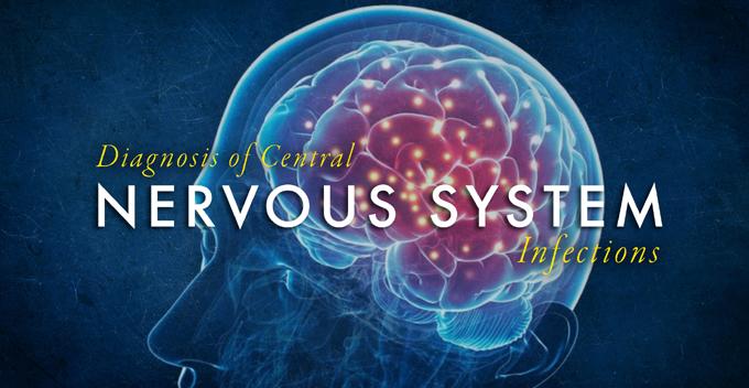 SARS Cov-2 afecta sistema nervioso central, afirman en Cuba