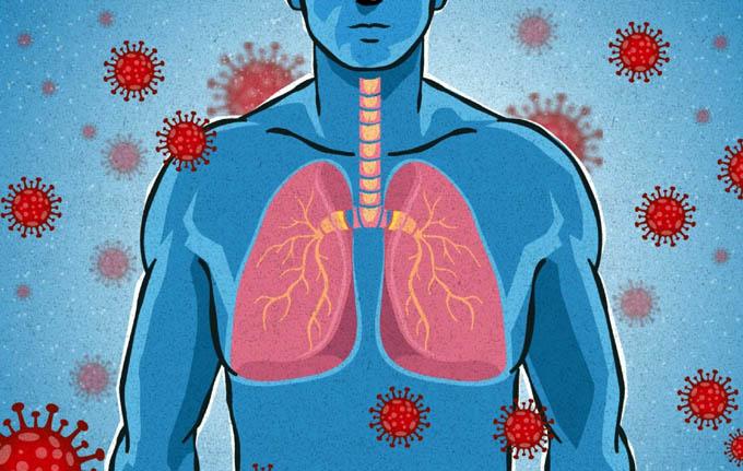 Anticuerpos contra Covid-19 disminuyen muy rápido tras contagio