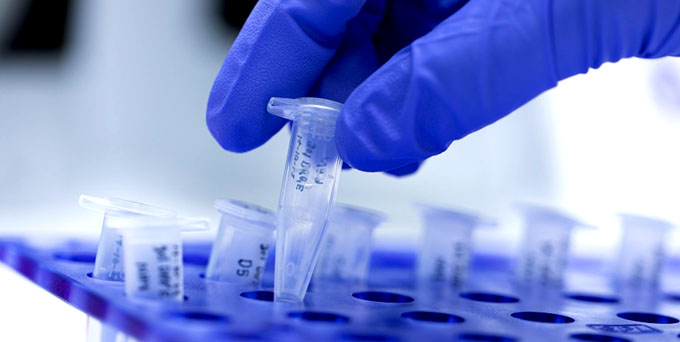 Procesará unos 400 PCR diarios laboratorio de Biología molecular de Granma (+ fotos)