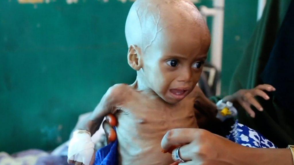 ONU alerta de crisis nutricional que amenaza a niños