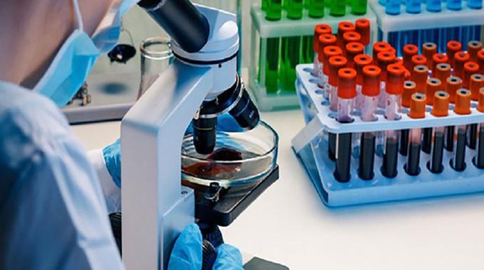 Confirman investigaciones que convalecientes de COVID-19 pueden reinfectarse