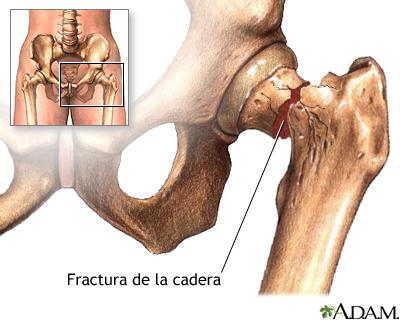 Investigación de las Universidades de Granma y Holguín favorece prótesis de cadera