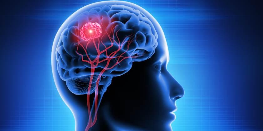 Desarrollan equipo electromagnético para combatir cáncer cerebral